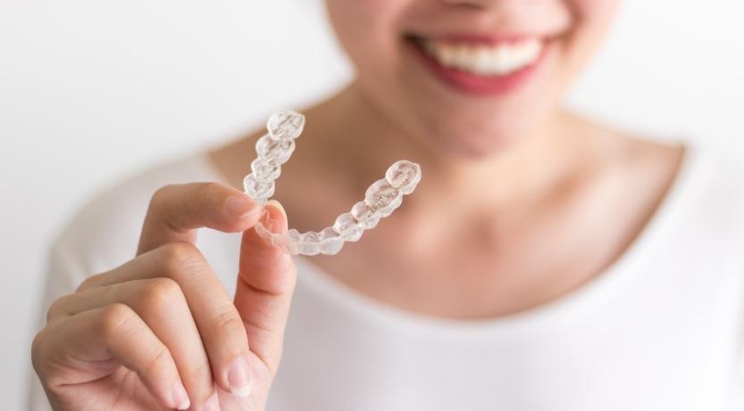 Odontoiatria Ancillotti   Ortodonzia Trasparente